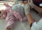 Чи потрібно вакцинувати дітей від поліомієліту